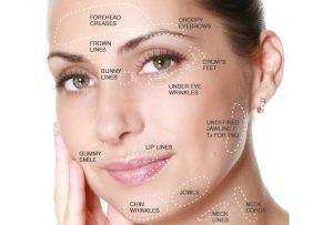 Θεραπεια με botox